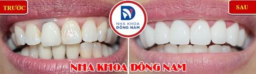 thay răng sứ kim loại bằng răng toàn sứ zirconia