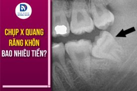 chụp x quang răng khôn bao nhiêu tiền