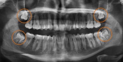 vị trí các răng khôn