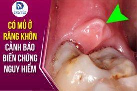 Có mủ ở răng khôn: Cảnh báo biến chứng nguy hiểm