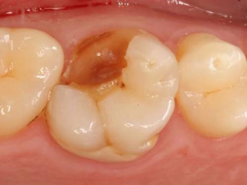 răng nhai bị gãy, vỡ