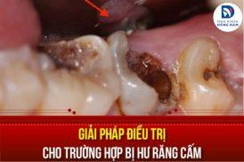 các giải pháp điều trị cho trường hợp bị hư răng cấm