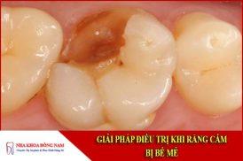 Giải pháp điều trị khi răng cấm bị bể mẻ