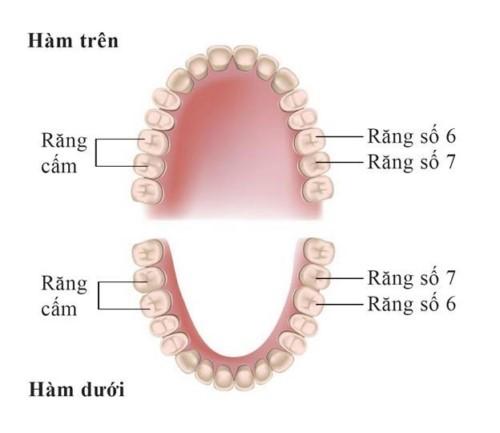 vị trí răng cấm trên cung hàm