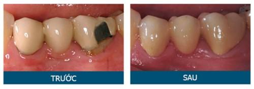 bọc sứ cho răng cấm bể mẻ