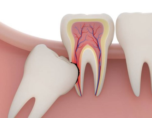 răng số 8 mọc ngầm