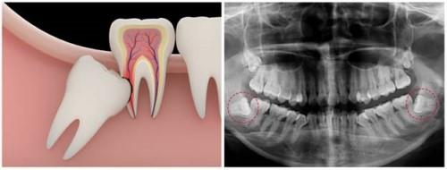răng số 8 mọc lệch