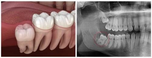 răng số 8 kẹt dưới nướu
