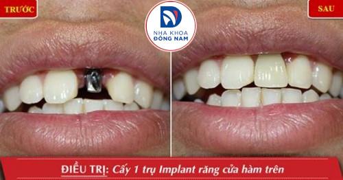 trồng 1 răng implant cho răng cửa
