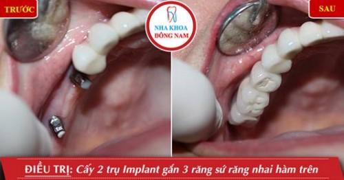 cấy 2 trụ implant phục hình 3 răng