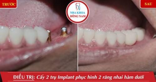 trồng 2 trụ implant hàm dưới