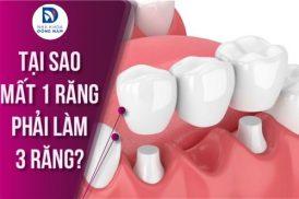 Tại sao mất 1 răng làm 3 răng sứ