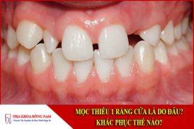 mọc thiếu răng cửa nguyên nhân và cách khắc phục