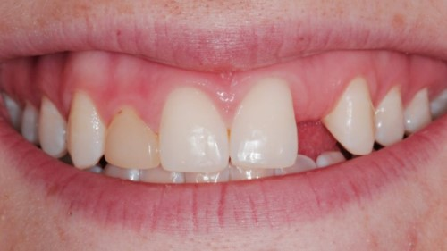 nguyên nhân thiếu 1 răng cửa
