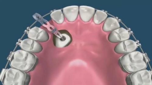 niềng răng mọc ngầm