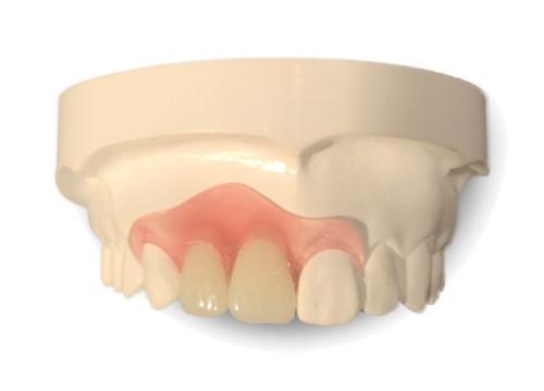 trồng răng cửa bằng răng tháo lắp