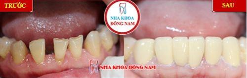 bọc sứ cho răng cửa mòn mặt nhai