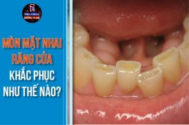mòn mặt nhai răng cửa khắc phục thế nào