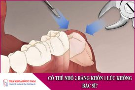 có thể nhổ 2 răng khôn 1 lúc không bác sĩ