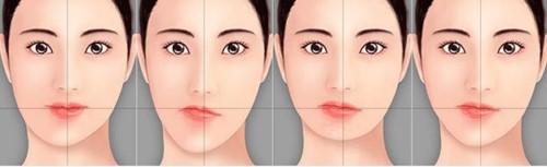 mặt bị lệch do nhai 1 bên hàm