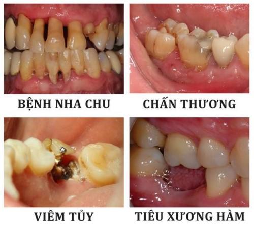 nguyên nhân răng cấm bị lung lay