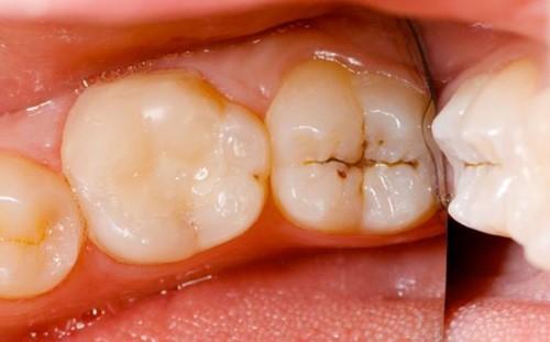 sâu kẻ răng