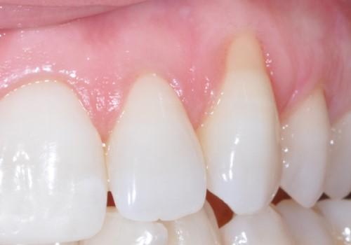 tụt nướu răng
