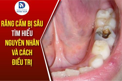 răng cấm bị sâu - nguyên nhân và cách điều trị