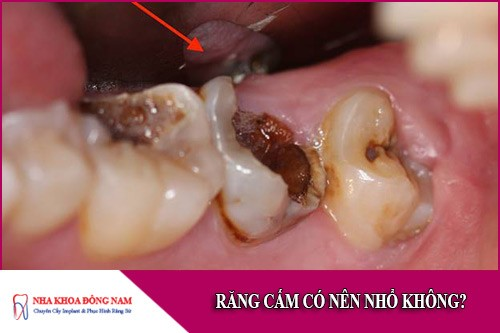 răng cấm có nên nhổ không