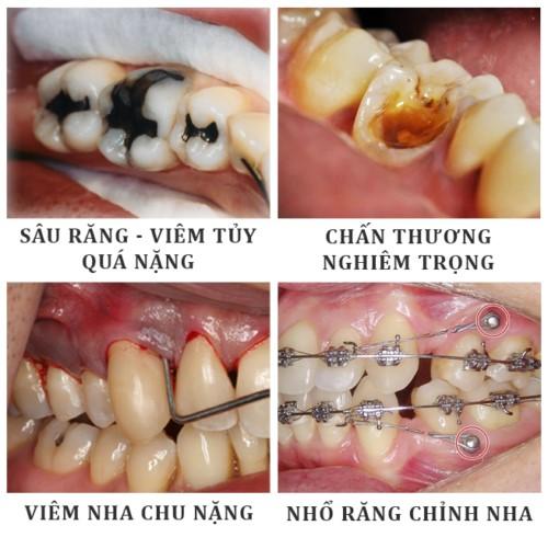 các trường hợp cần nhổ răng cấm