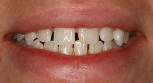 Nguyên nhân răng cửa hở