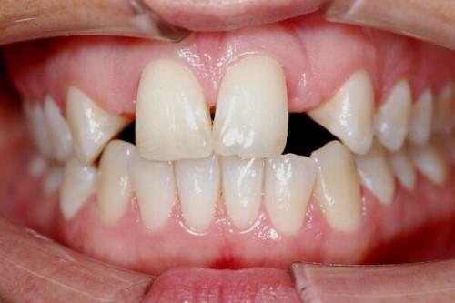 răng cửa hở do thiếu mầm răng