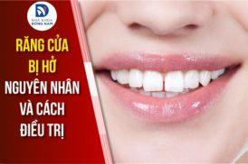 Răng cửa hở: Nguyên nhân và cách điều trị