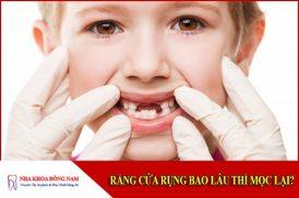 Răng cửa rụng bao lâu thì mọc lại