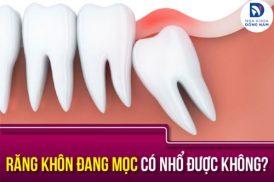 răng khôn đang mọc có nhổ được không