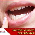 Răng khôn là răng gì? Tại sao gọi là răng khôn?