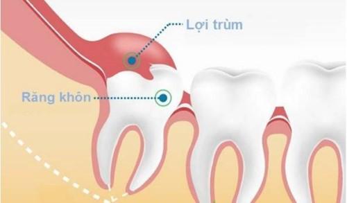 lợi trùm răng khôn