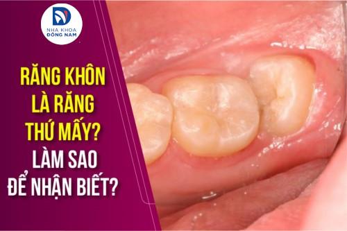 Răng khôn là răng thứ mấy? Làm sao để nhận biết?