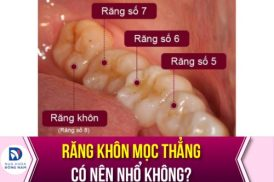 răng khôn mọc thẳng có nên nhổ không