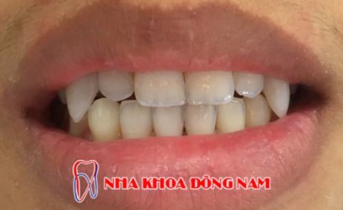 đắp răng nanh