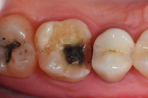 răng nhai bị sâu