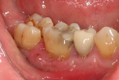 răng nhai bị nứt