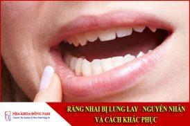 Răng nhai bị lung lay: Nguyên nhân và cách khắc phục