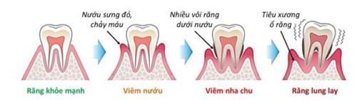 răng nhai lung lay do viêm nha chu