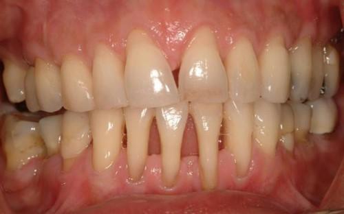 hiện tượng tụt nướu răng