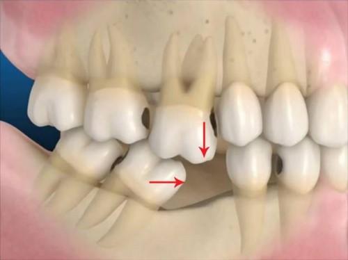 hiện tượng xô lệch răng, tiêu xương