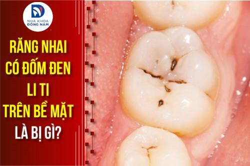 Răng nhai có đốm đen li ti trên bề mặt là bị gì