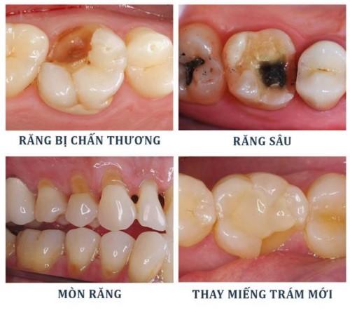 các trường hợp cần trám răng nhai