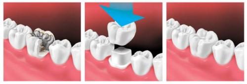 quy trình bọc sứ cho răng nhai