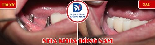 cấy 2 trụ implant răng nhai
